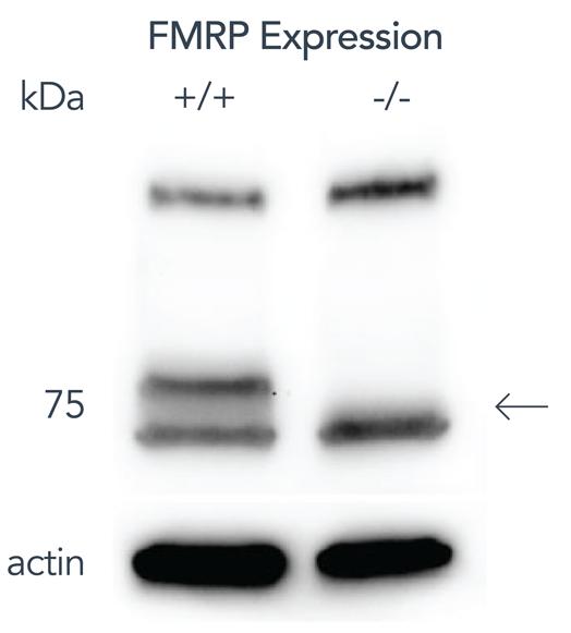 Fmr1_figure1-01